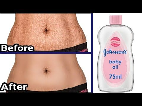 In 5 Days Remove Stretch Marks Completely | World'