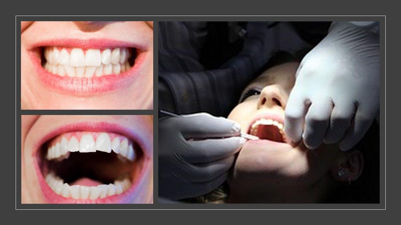 Periodontal Surgery Periodontal treatment, Surgery
