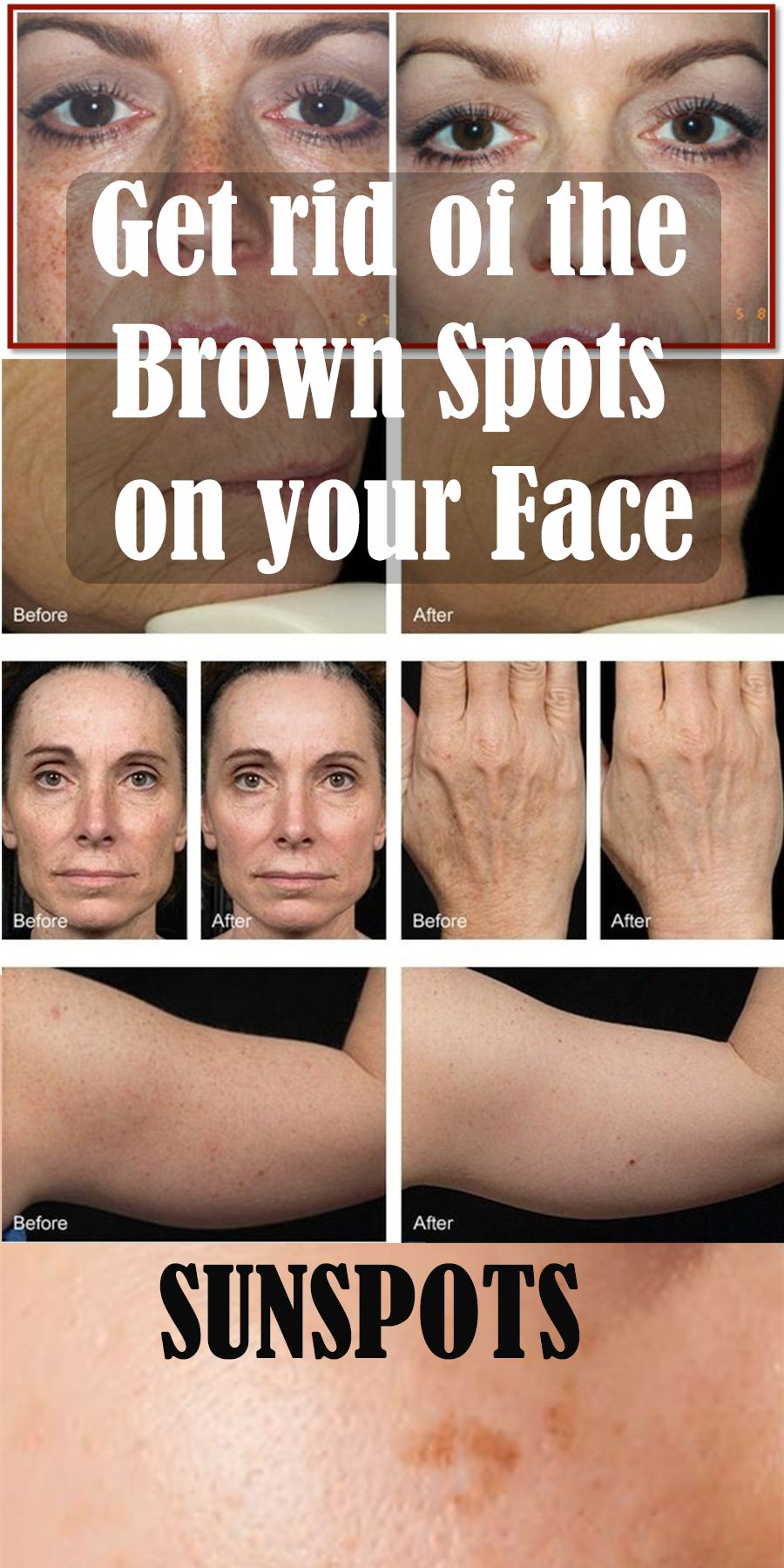 Get rid of the brown spots on your face