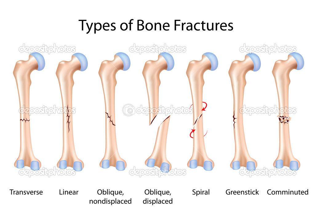 Pin By Chelsea Crispyn On Nursing Pinterest Types Of Bones