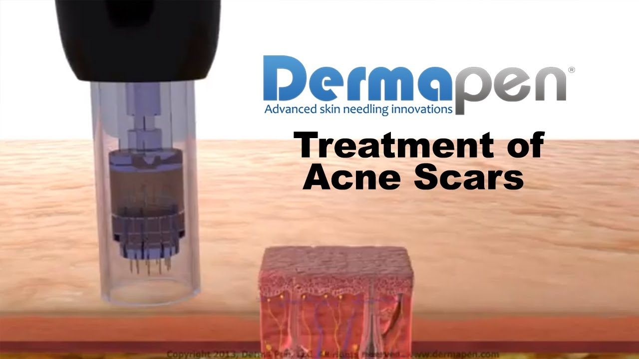 The Dermapen micro needling device delivery provides