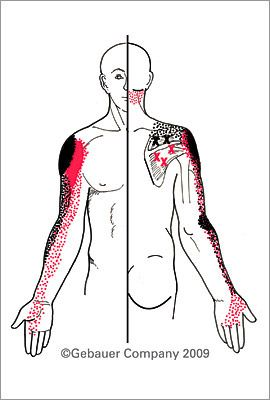 Infraspinatus -Rotator Cuff | Trigger points, Trigger ...