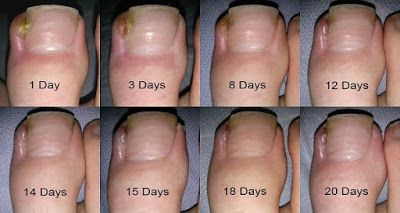 Daily Health Tips: 4 PAINLESS STEPS HOW TO REMOVE INGROWN TOENAIL ...