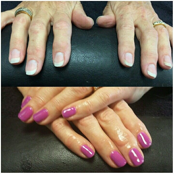 Before & After Biosculpture overlay on natural nails ...