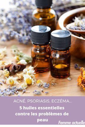 Acné, psoriasis, eczéma… 5 huiles essentielles contre les ...