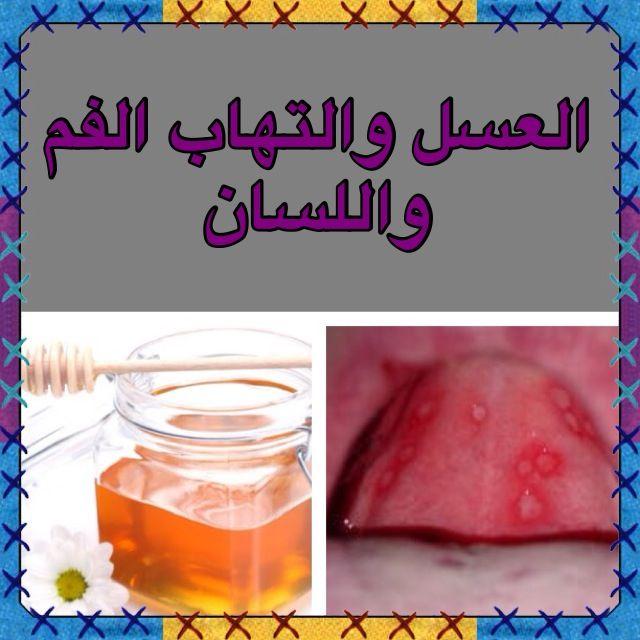 عربي Eng لالتهاب الفم واللسان توضع ملعقة عسل في نصف كوب ماء ساخن ويتم الغرغرة به ثلاث مرات يوميا فإنه يقضي على ذلك خلال أيام قليلة To Inflammation Sante