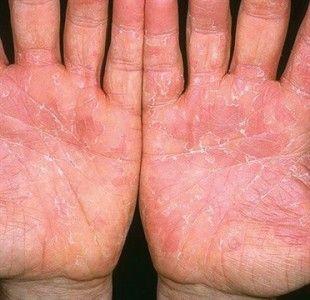 peeling skin on palms of hands