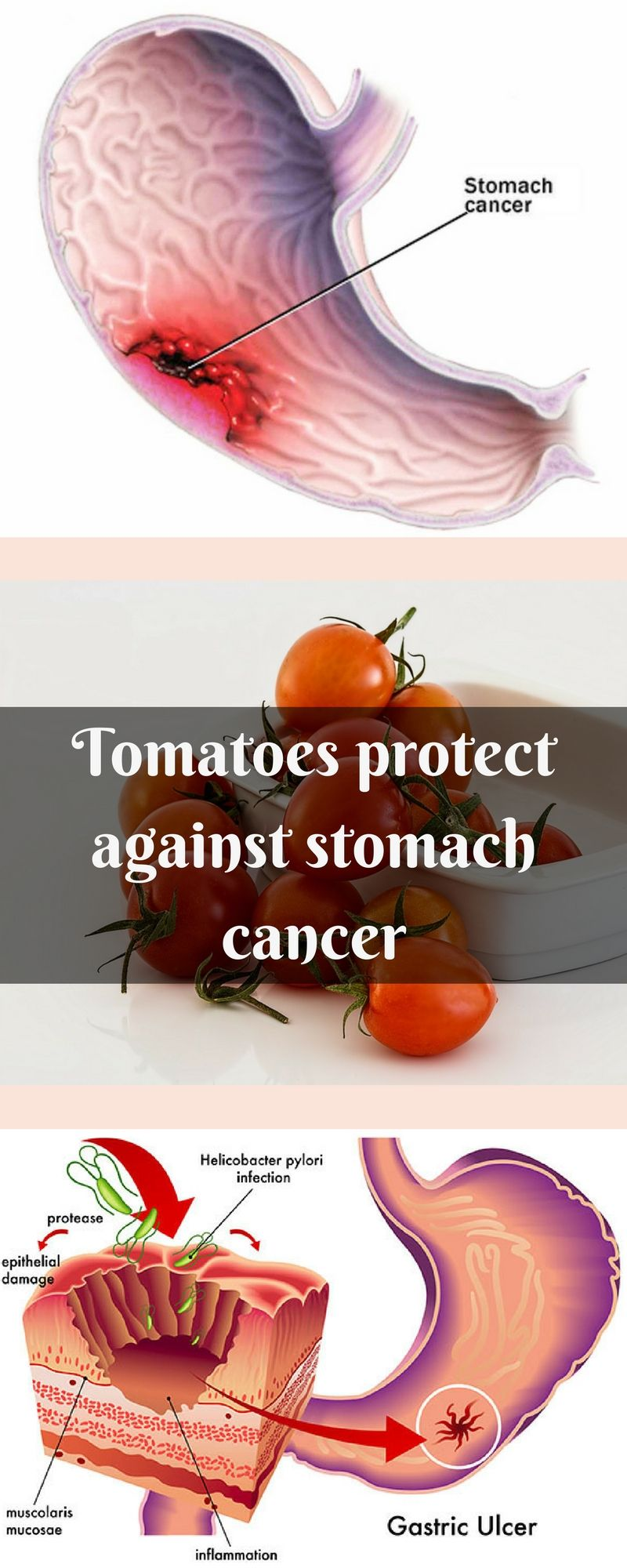The treatment of tomatoes affected the ability of cancer cells to grow and in fitting and in semi-solid medium, reducing the ability of cells to migrate. On the non-malignant cells were observed no toxic effects
