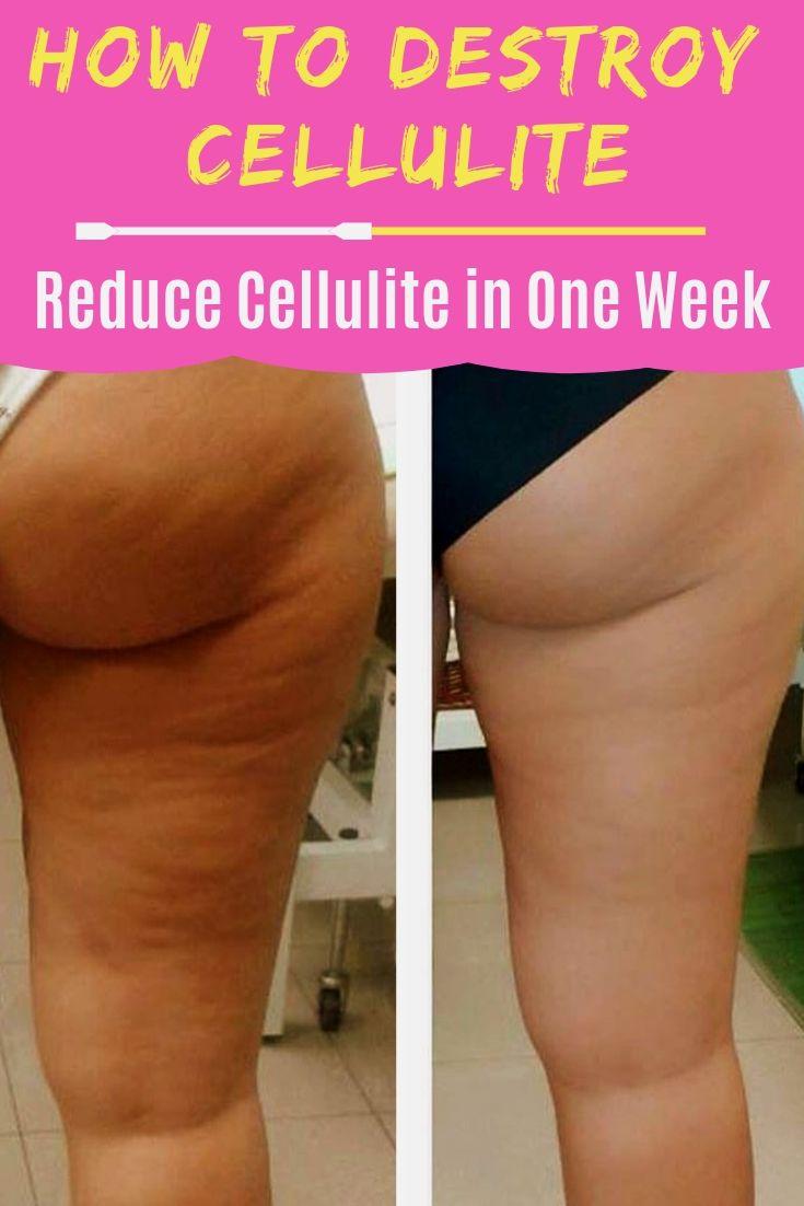 anti cellulite dieet