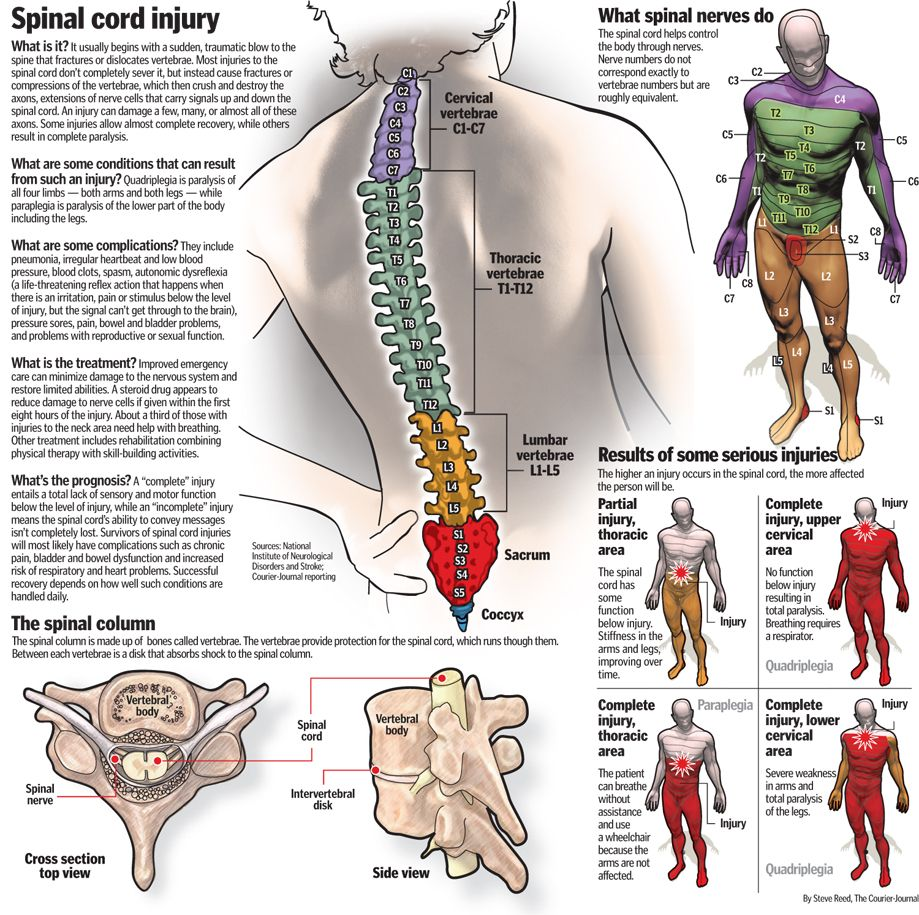 Spinal Cord Injury Pinned By Ottoolkit Treatment Plans And