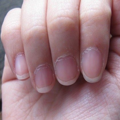5 Easy Methods To Prevent Dry Cuticles