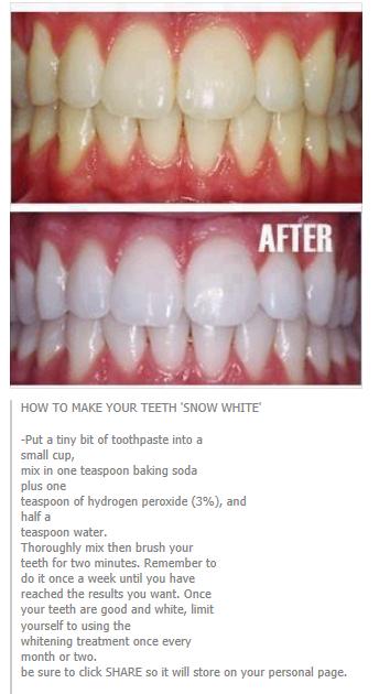 Whiter Teeth Diy Pinte