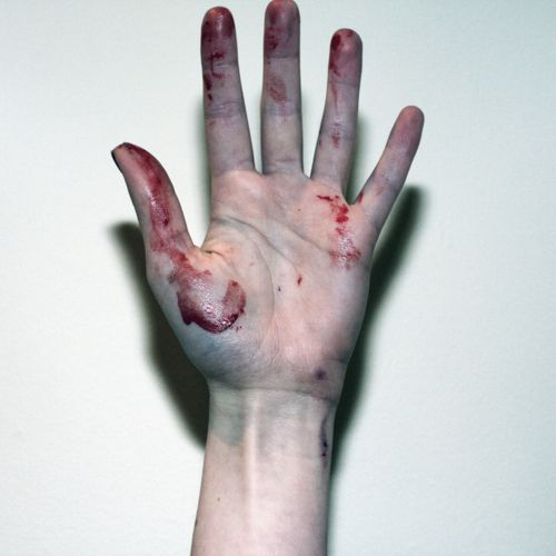 картинки наша рука без кожи