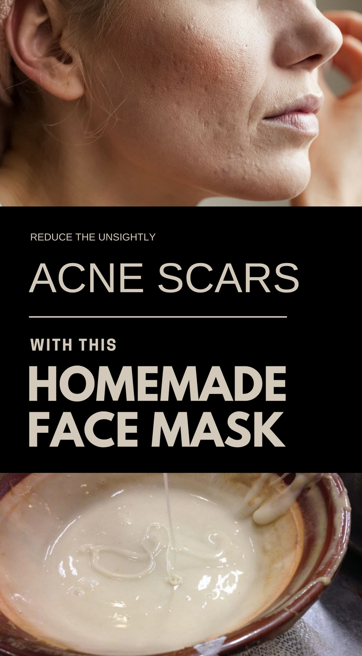Reduce the Unsightly Acne Scars with this Homemade Face