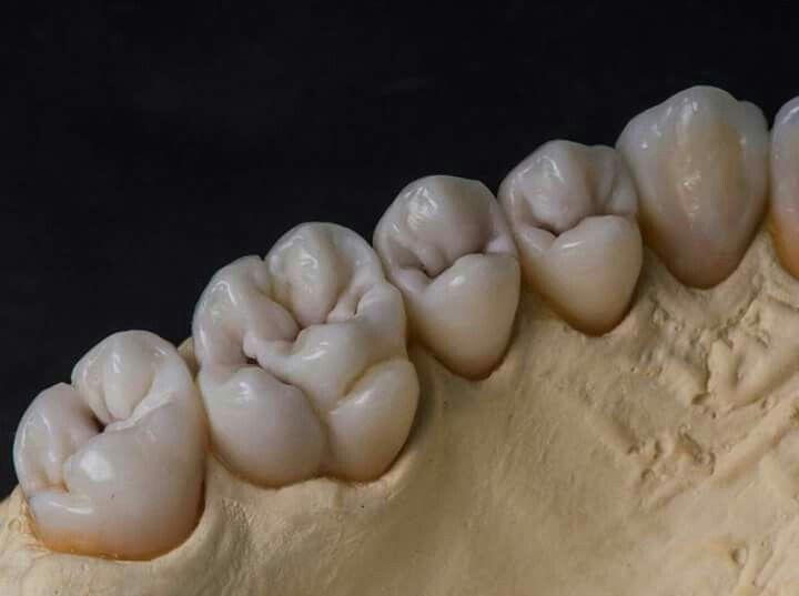 Pin de Héctor Frausto en Escuela y cónsultorio | Pinterest | Dental ...