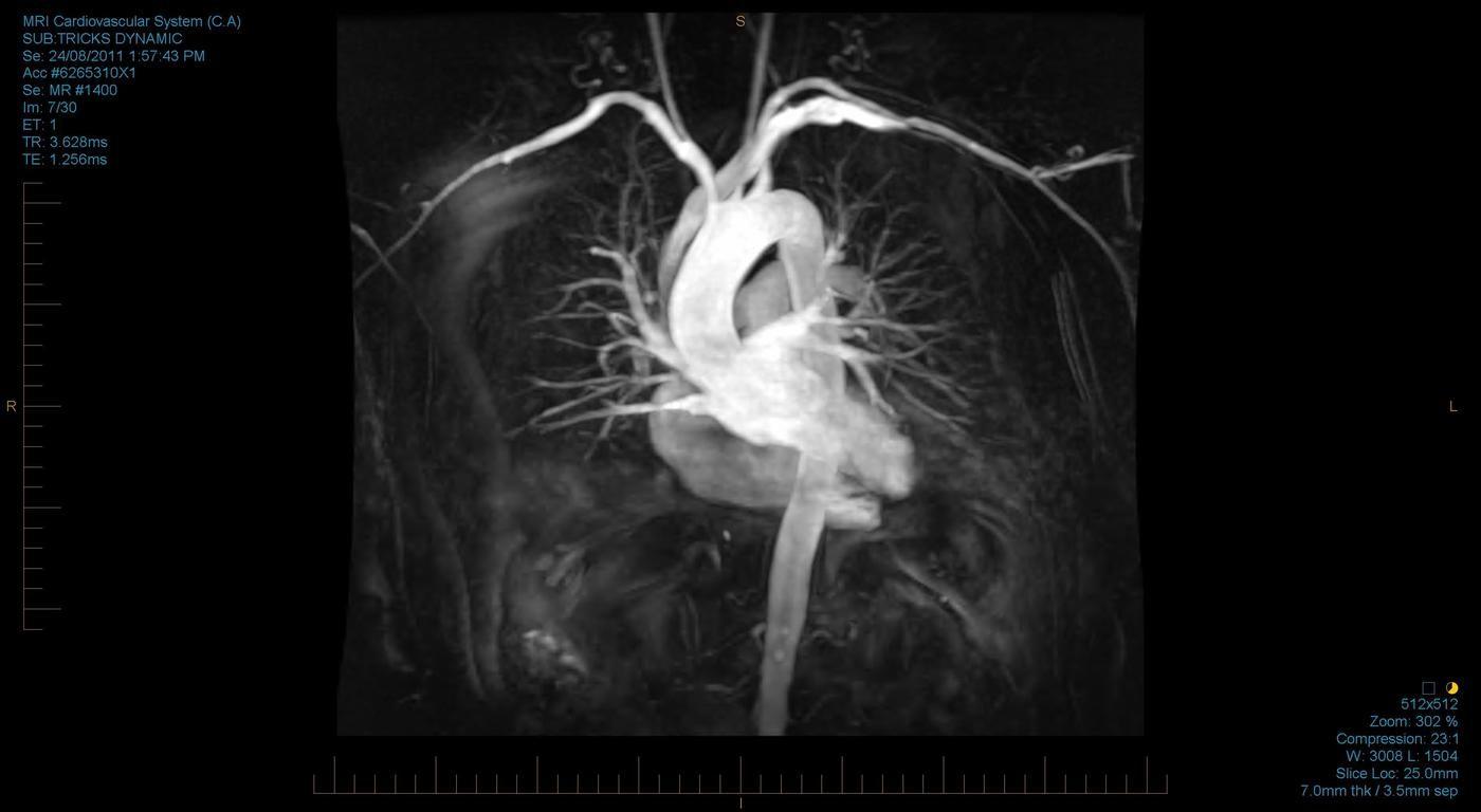 cardiac mri - Google Search   MRI & Xray & Medical   Pinterest
