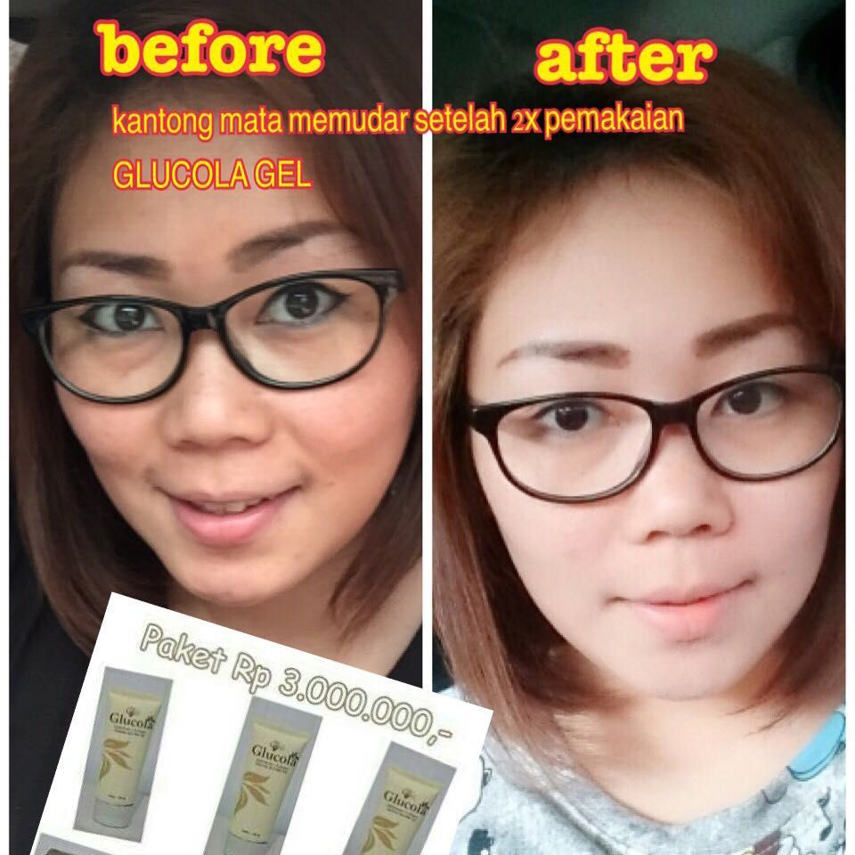Glucola Gel MGI, before and after Produk, Indonesia