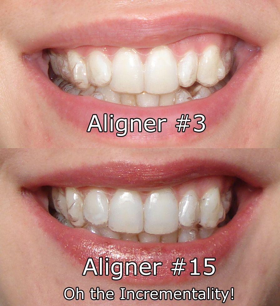 Invisalign tips invisalign teeth straightening