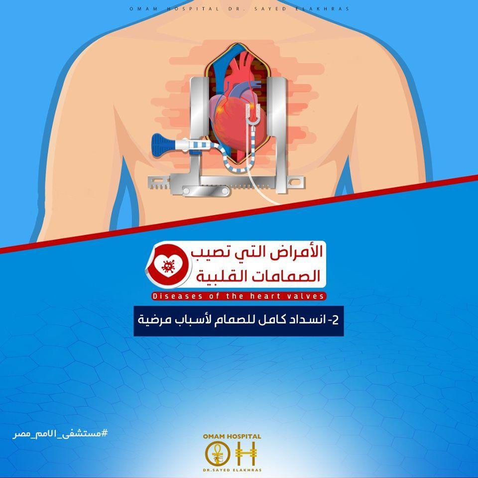 لأمراض التي تصيب الصمامات القلبية يمكن أن تكون خلقيه أو يصاب بها الشخص مع الوقت وهذه الأمراض هي للمزيد اضغط علي الرابط التالي ل Heart Valves Heart Hospital