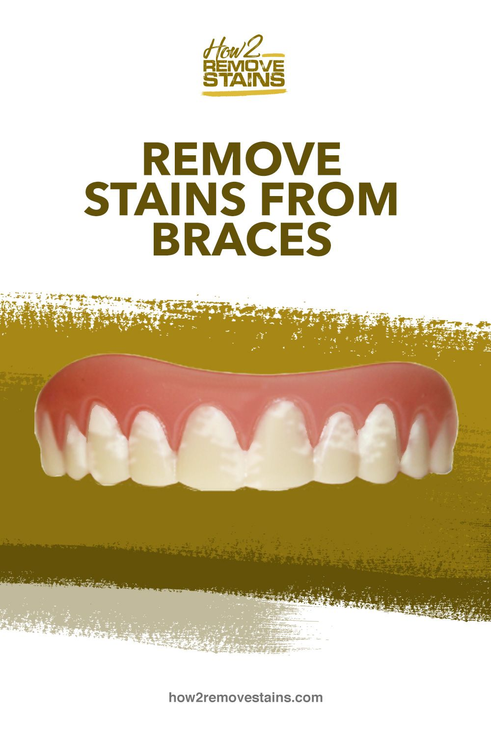 How to Remove Stains from Braces in 2020 Stain remover