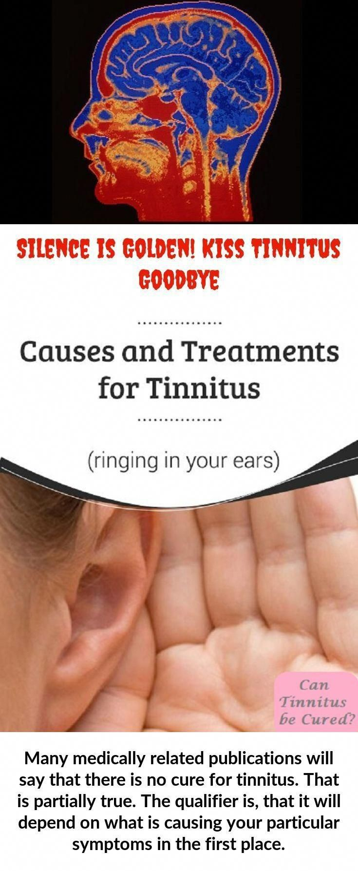 Can tinnitus be cured tinnitus cure tinnitus remedies