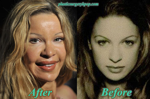 Alicia Douvall Plastic Surgery Before And After Pictures Alicia Douvall Celebrity Plastic Surgery Plastic Surgery Plastic Surgery Gone Wrong