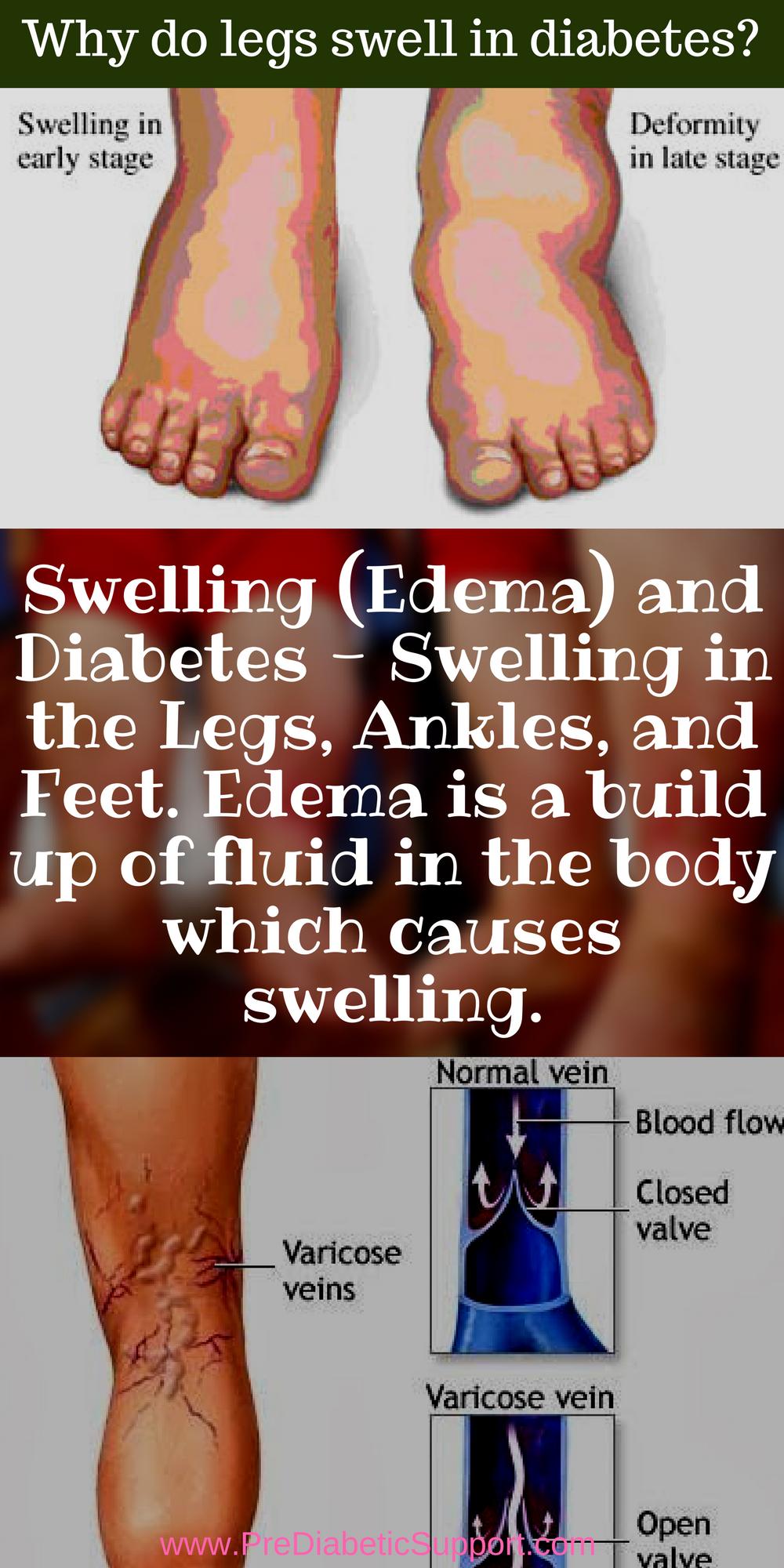 Pin On Diabetes Symptoms