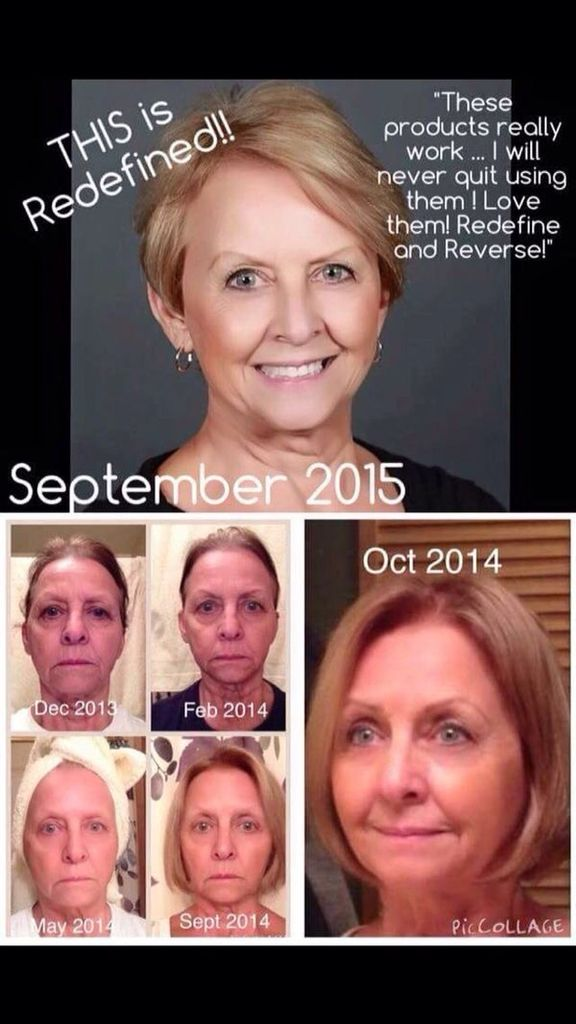 Rodan And Fields Redefine Reverse Has Made Her Look 20 Years Younger WOW