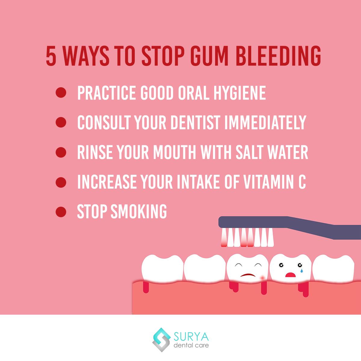 Bleeding Gums The symptom that alerts everyone regarding