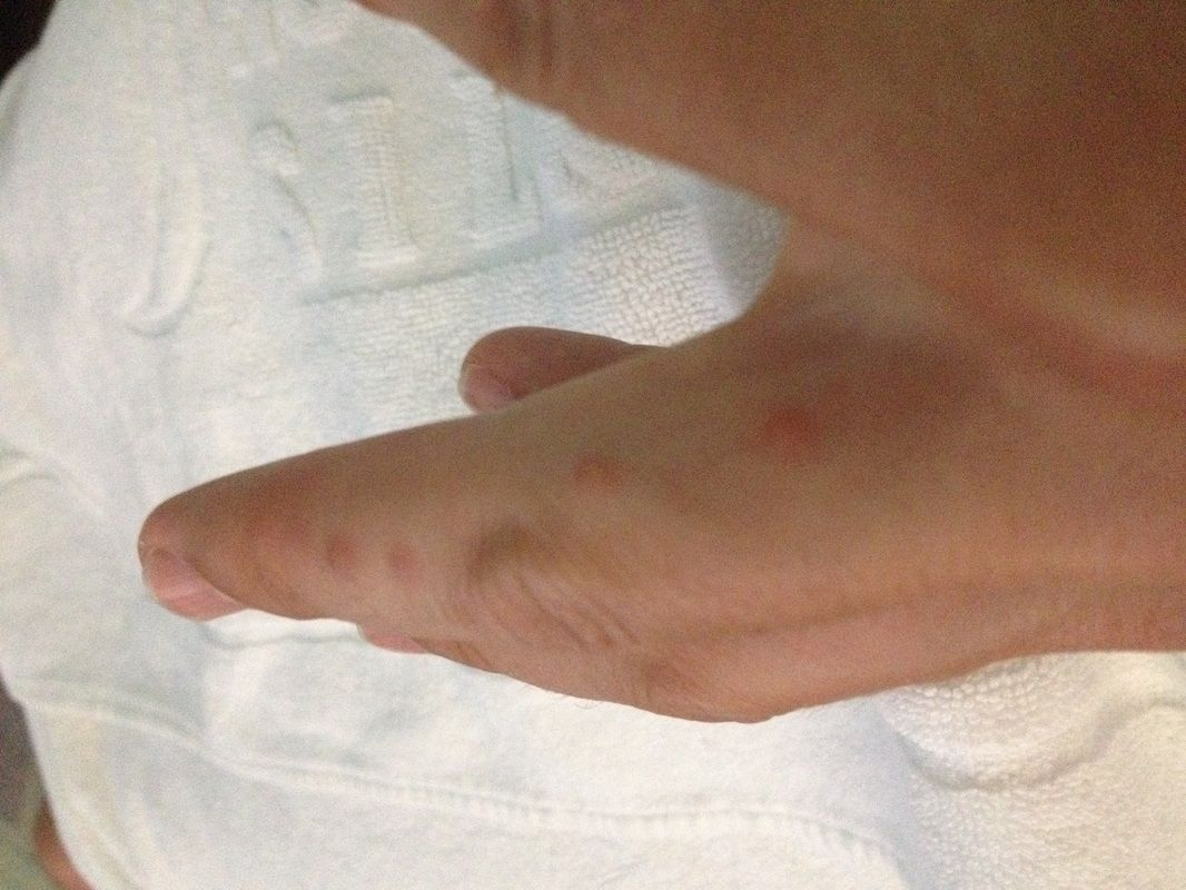 Bed Bug Bites On My Finger (With images) Bed bugs, Bed
