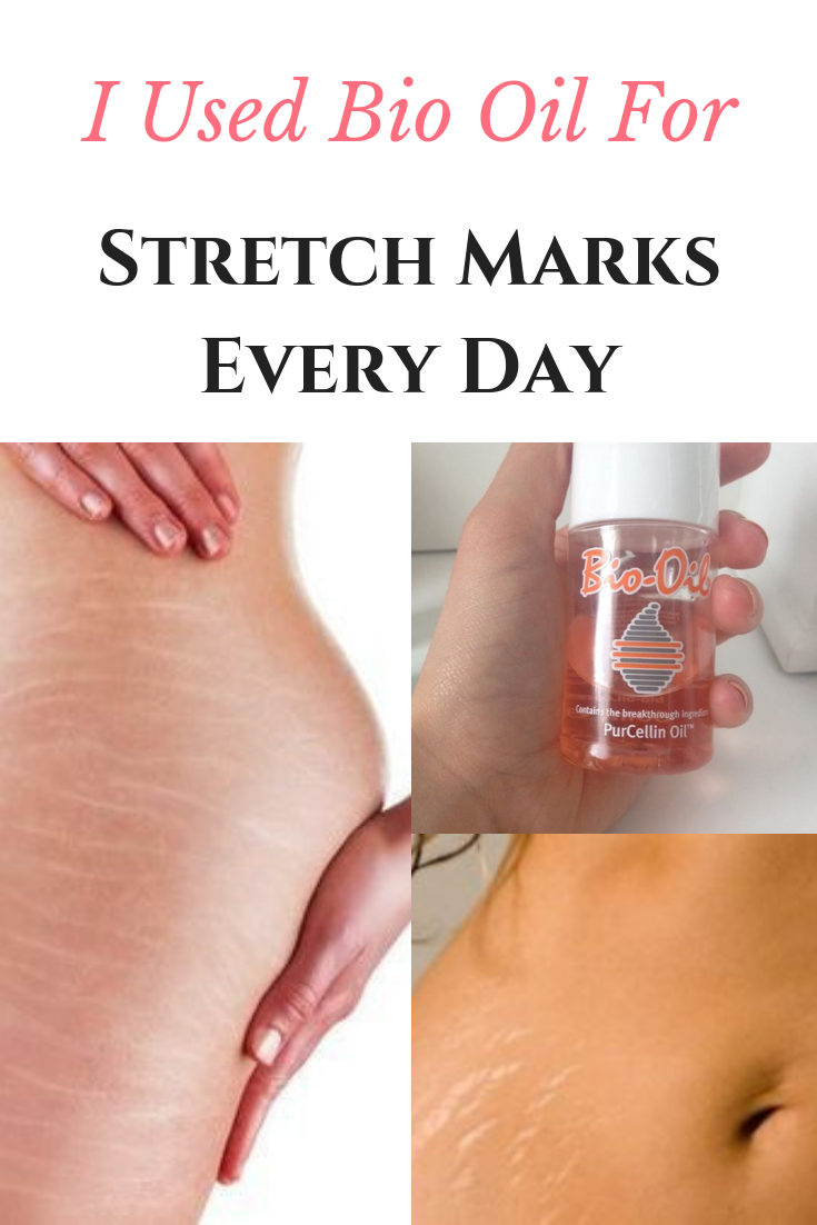 I Used Bio Oil For Stretch Marks Every Day  Here Is What You Should Know AcneRemediesHomemade is part of Oil for stretch marks -