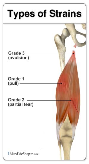 The Most Common Hamstring Injuries Are Grade 1 Or 2 Strains Which