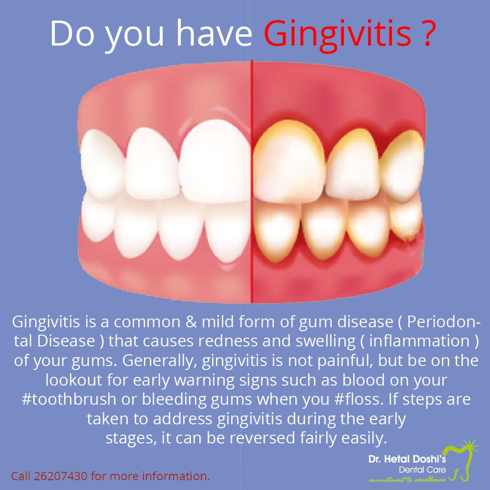 Do you have gingivitis? Signs of Gingivitis include red