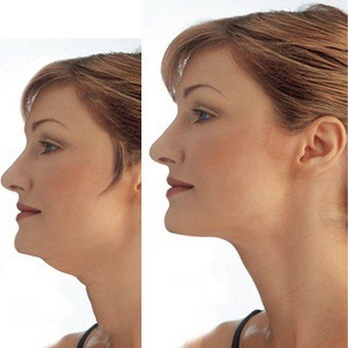 Упражнения Похудения Шеи. Откуда берется жир на шее и эффективные способы избавления