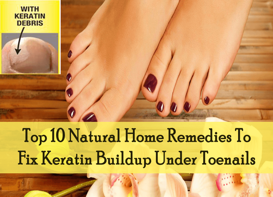 Top 10 Natural Home Remedies To Fix Keratin Buildup Under Toenails