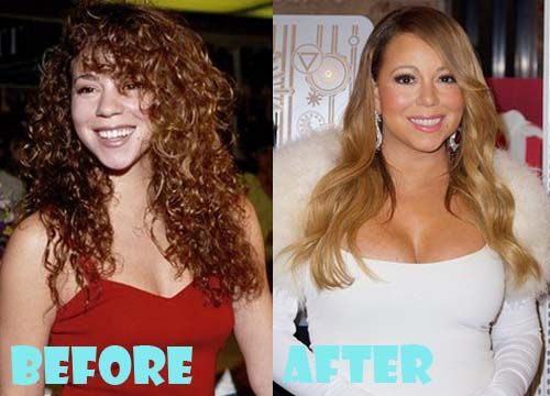 E Breast Implants Before And After Mariah Carey Plastic S...