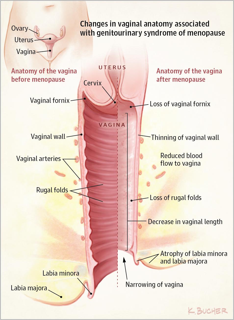 Vaginal And Urinary Symptoms Of Menopause Jama 2017317131388