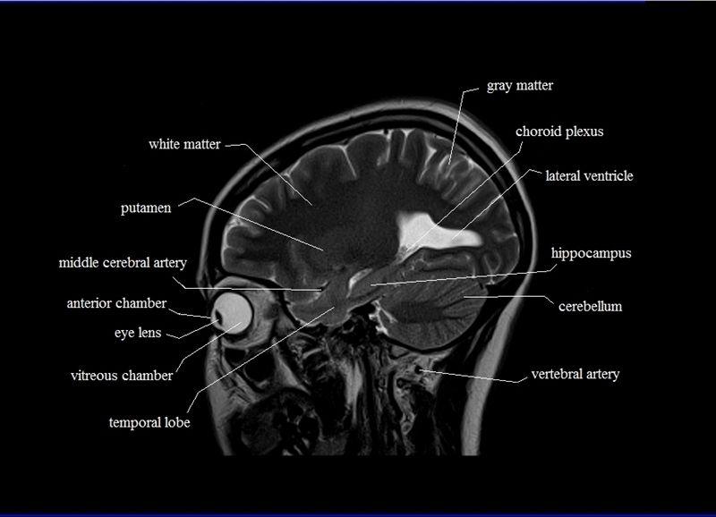 Mri Sagittal Cross Sectional Anatomy Of Brain Image 17 Radiology