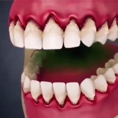 Gingivitis & Gum Disease dentalcare Gum disease