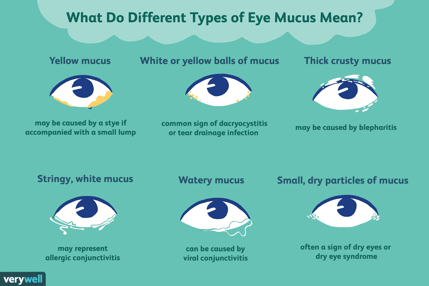 Types Of Eye Mucus Discharge And Boogers Types Of Eyes Mucus Pink Eye In Toddlers