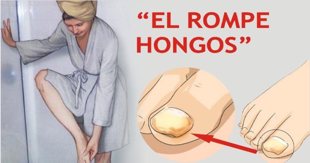 CÓMO ELIMINAR LOS HONGOS DE LAS UÑAS DE UNA PASADA