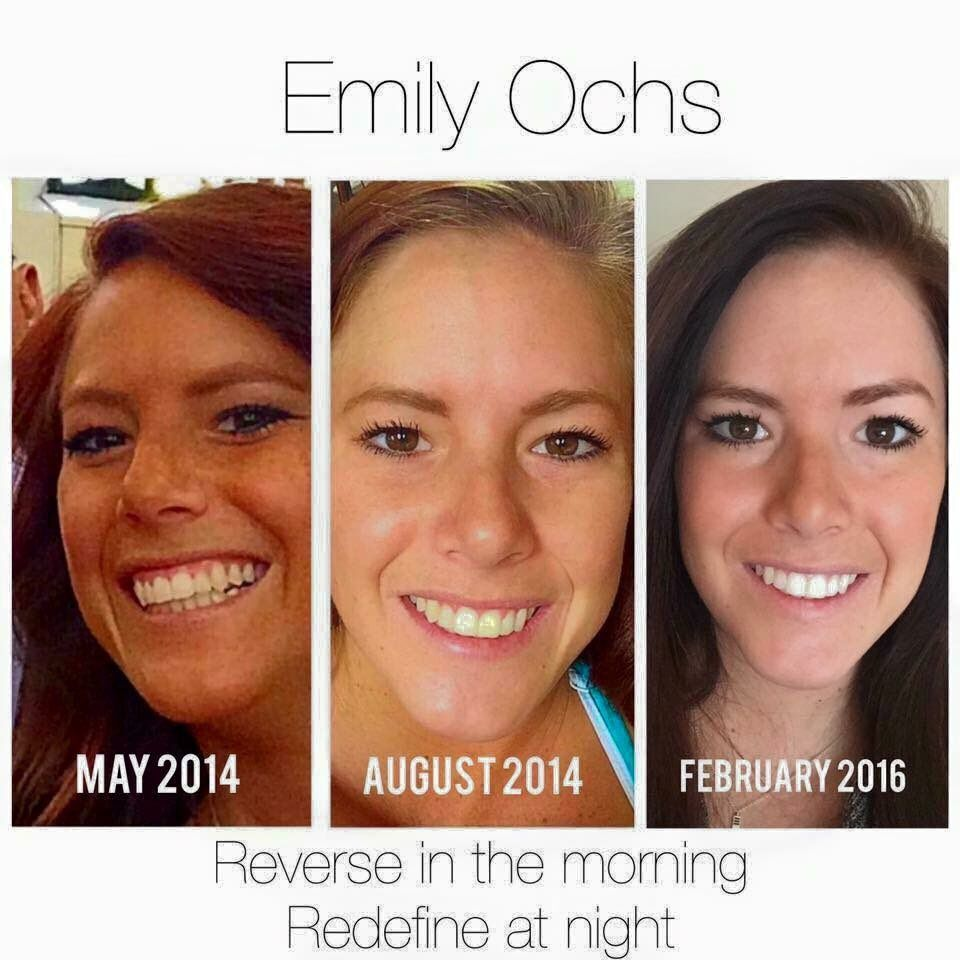 RT https://t.co/BUbolOUo27 Message me so you can get started on your best #skin yet! #skincare #rodanandfields #R https://t.co/zzXqIuJnGx