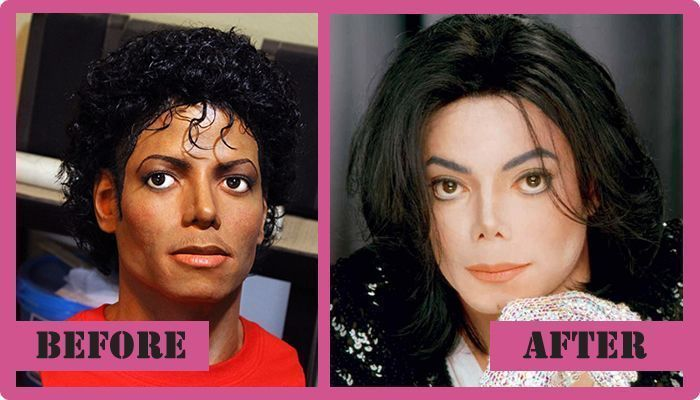 Michael Jackson Plastic Surgery Before And After Michael ...