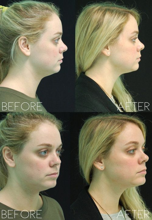 Before After Cool Mini Double Chin Cool Sculpting Body Contouring Beauty
