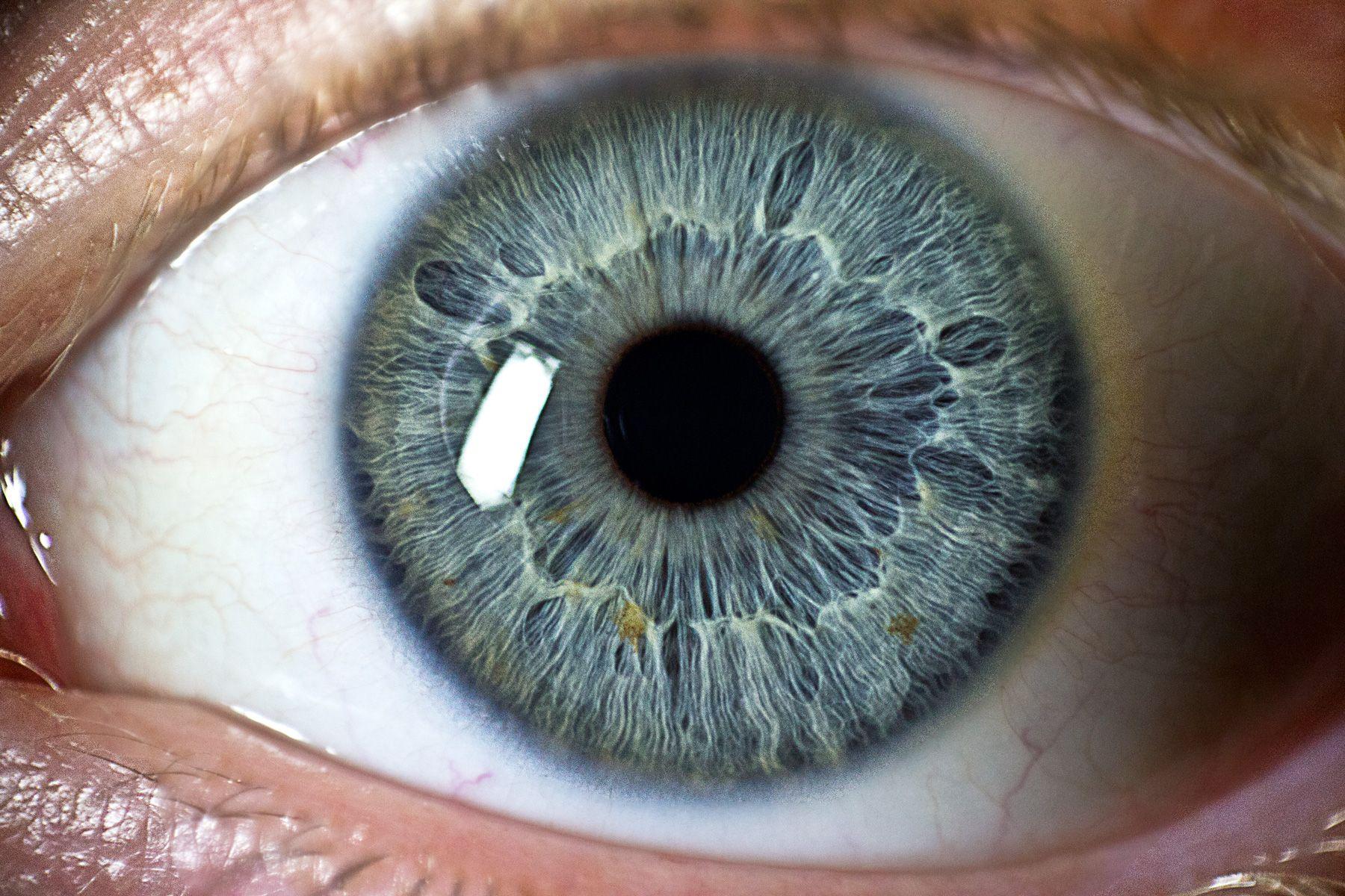 eyes ️No Pin Limits ️More Pins Like This One At ...