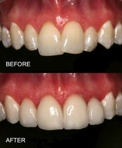 Porcelain Veneers Before And After Photos For A Slightly Overlapped Tooth Sometimes The Root In The Tooth Is Too Porcelain Veneers Veneers Teeth Nice Teeth