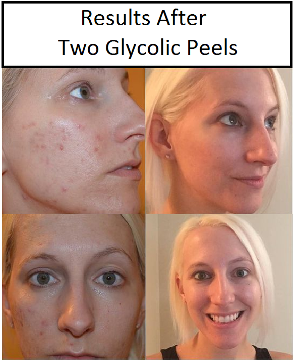 glycolic peel at home