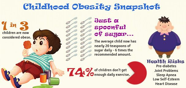 Child Obesity – A Development Time-bomb