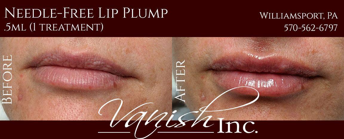 Photo of Hyaluron Pen Lip Filler