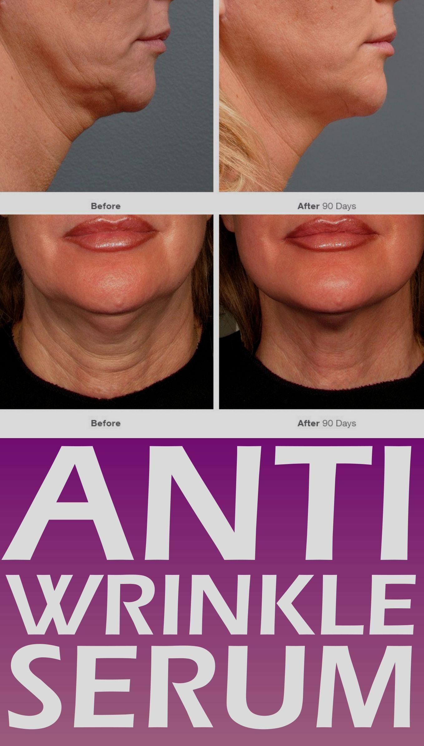 Pin by delmericuji37 on Skin Care in 2020 Anti wrinkle
